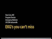 EKGs You Cant Miss