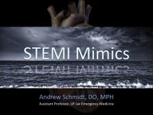 STEMI Mimics